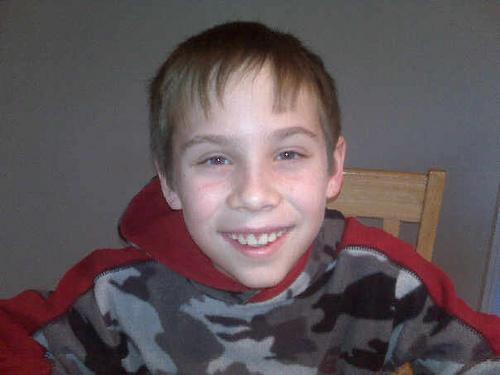 Benton with his braces off!